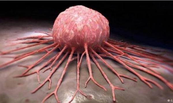 بشرى لمرضى السرطان..جميع أنواع السرطان ستزول في غضون أسبوعين إلى 6 أسابيع + فيديو