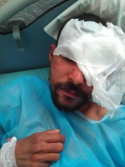 المريض الذي تكفل به عامل الاقليم يجري عملية جراحية دقيقة كللت بالنجاح.
